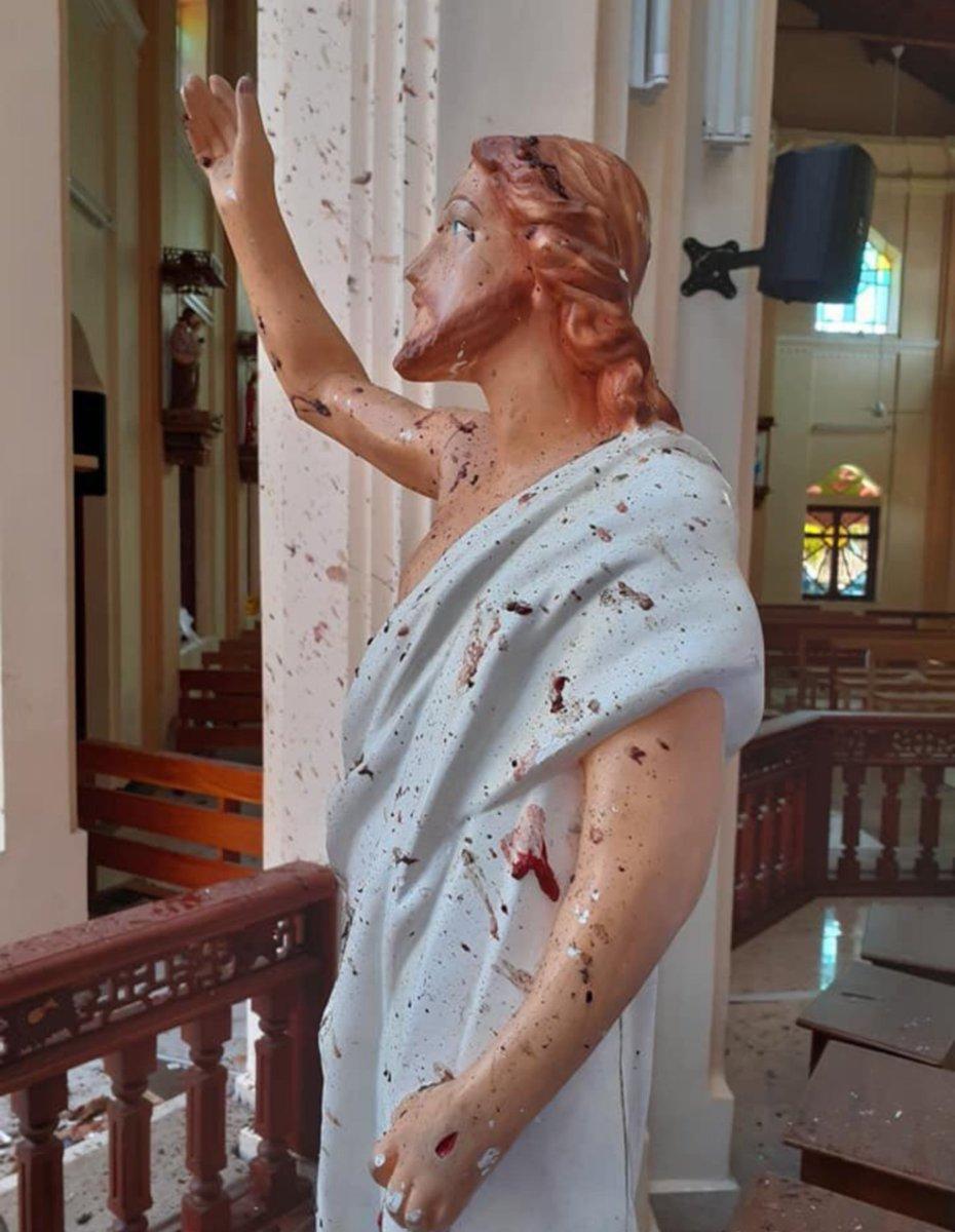 因爆炸案震惊世界的斯里兰卡,曾让全球14万人重见光明
