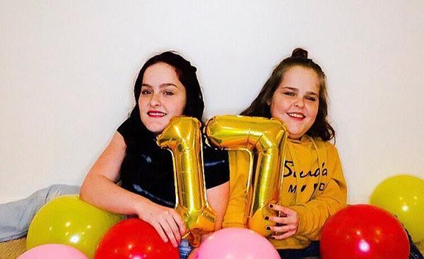 美连体双胞胎手术分离后成活 生活与常人无异