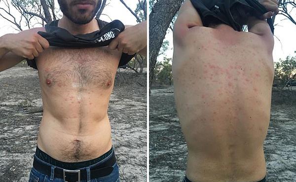 澳小镇爆发淡水危机 居民用污染水冲澡起红疹