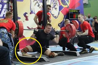 俄举重运动员挑战250公斤深蹲发生意外致腿折断