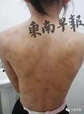 怒!福建南安11岁女孩遭毒打、开水烫!伤痕累累!后妈涉案被拘!