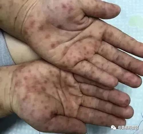紧急提醒!这种病毒出现新症状,近期进入感染高发季!