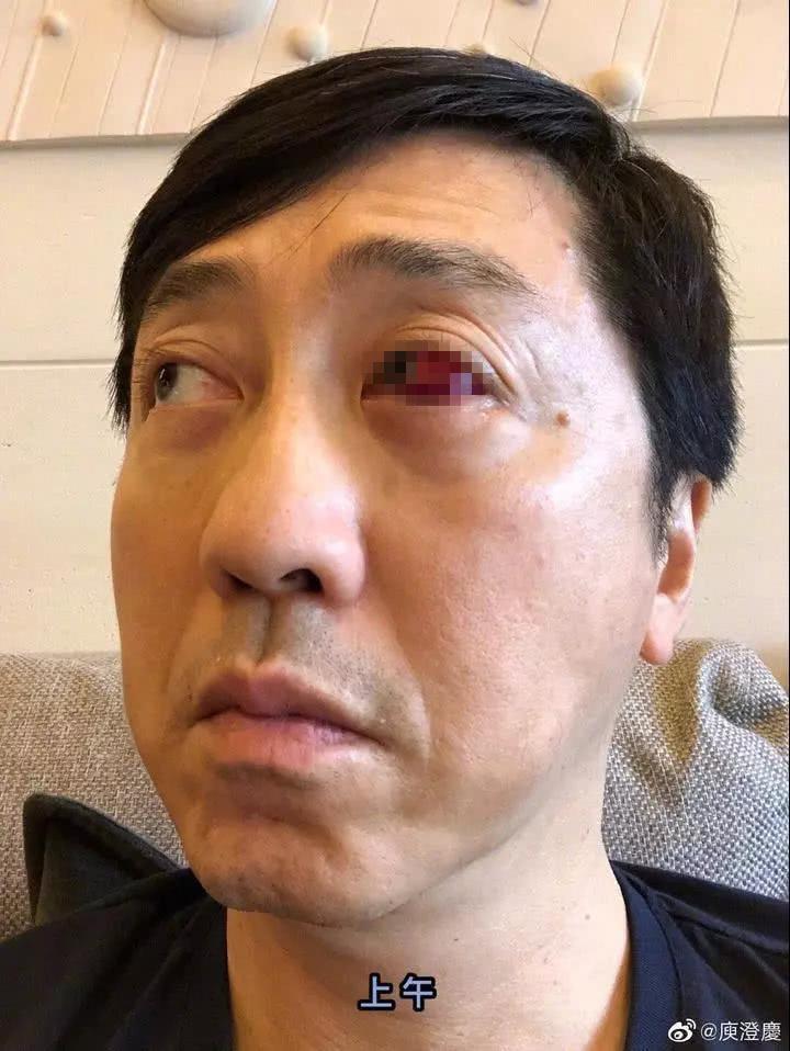 """庾澄庆""""血眼""""吓懵网友 医生却说这病很常见"""