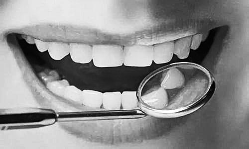 拔牙镶牙 你该关心哪些事儿