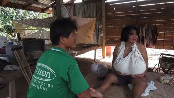 泰国一女子因患怪病胸部疯长 已伤及脖子和膝盖