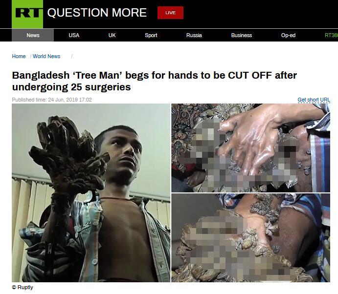 """接受25次手术后,孟加拉国""""树人""""小伙主动要求截肢"""