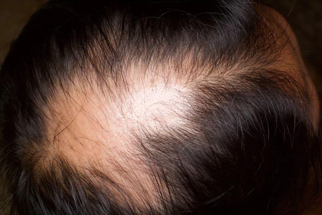 男子植发后斑秃,索赔精神损失费300万元!法院:2000元