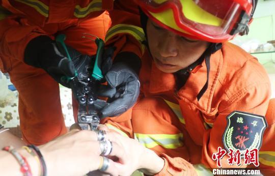 一男子戴53枚戒指致手指严重变形 消防成功取下