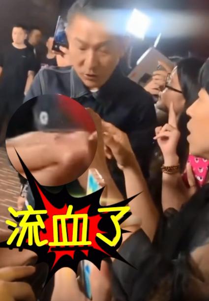 刘德华手指意外扎伤 暖心告诫粉丝注意安全