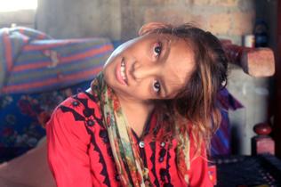 巴基斯坦女孩摔跤后脖子弯曲90度无法复原