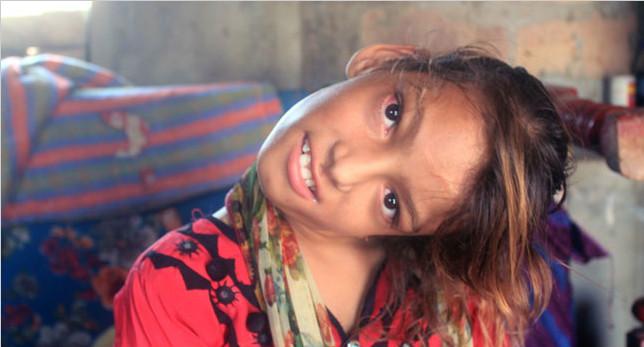 巴基斯坦女孩患怪病 摔一跤脖子弯曲90度
