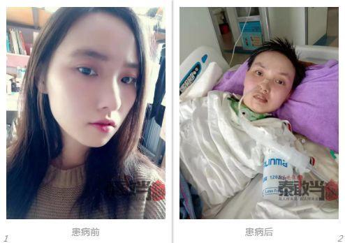 被蚊子咬一口,21岁漂亮女孩躺进重症监护室快1年!