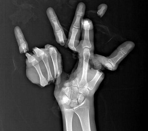 泰国一男子手遭压缩机粉碎 医生妙手为其缝合