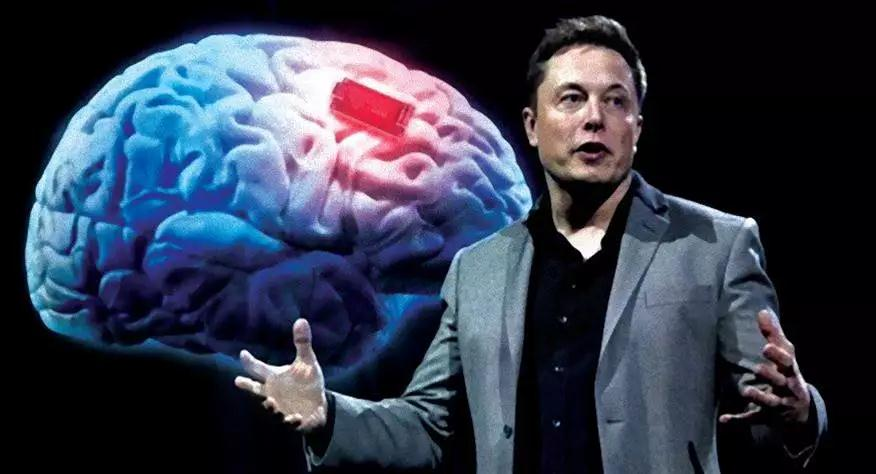 """摩杰:黑客帝国来了?马斯克搞""""人脑植芯片""""项目:头骨钻孔,插电极线"""