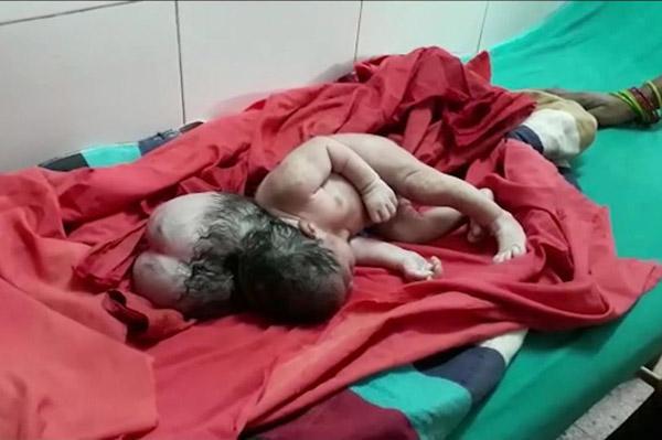 """罕见! 印度产妇生下畸形""""三头女婴"""""""
