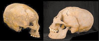 """1.2万年前人类已会颅骨""""整形"""""""
