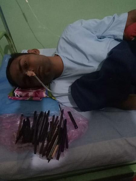 印尼一男子腹疼 医生从其肚中取出30余件利器