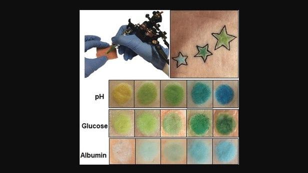 永久性纹身可用于长期监测慢性病患者的状况