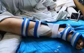 10岁女孩玩网红蹦床摔断右腿!