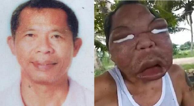 菲律宾男子患怪病五官肿胀4倍 无力支付医药费