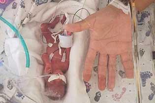 美国一女子怀孕23周早产 婴¤儿巴掌大仅368克