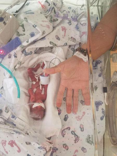 美国一女子怀孕23周早产 婴儿巴掌大体重仅368克
