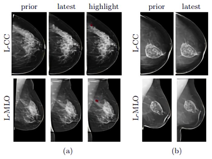 深度学习10万张乳房X光照片 AI模型帮助筛查乳腺癌