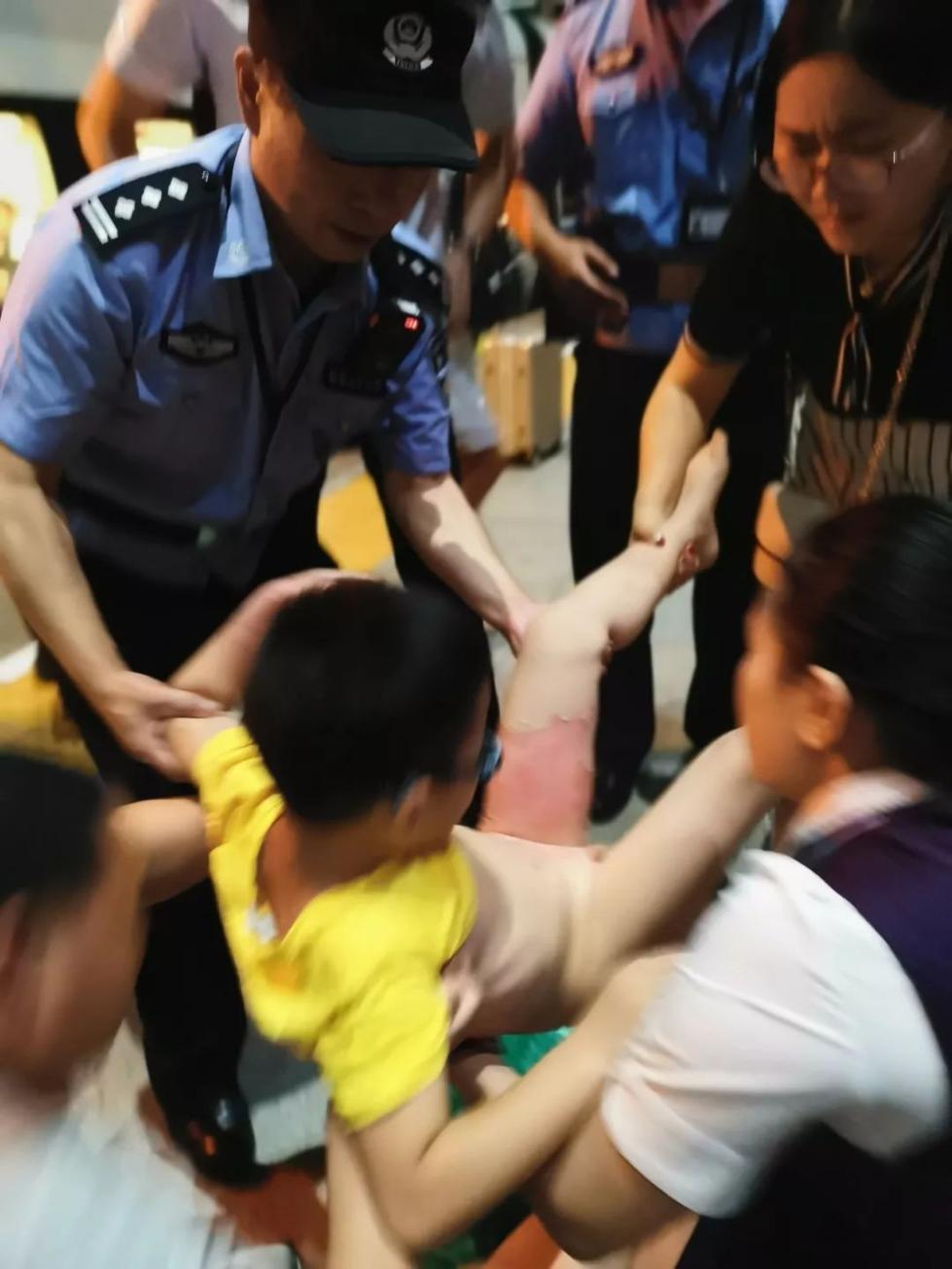 紧急!高铁上,8岁男童被开水严重烫伤!家长这个操作却造成二次伤害!