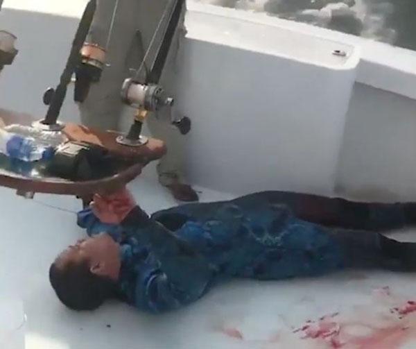 英国一男子潜水被鲨鱼咬伤,偶遇医疗专业人员船保住性命