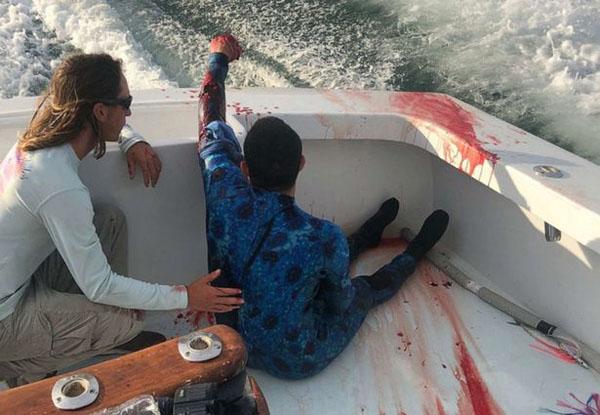 一名40岁男子被鲨鱼咬伤,幸运偶遇医疗船