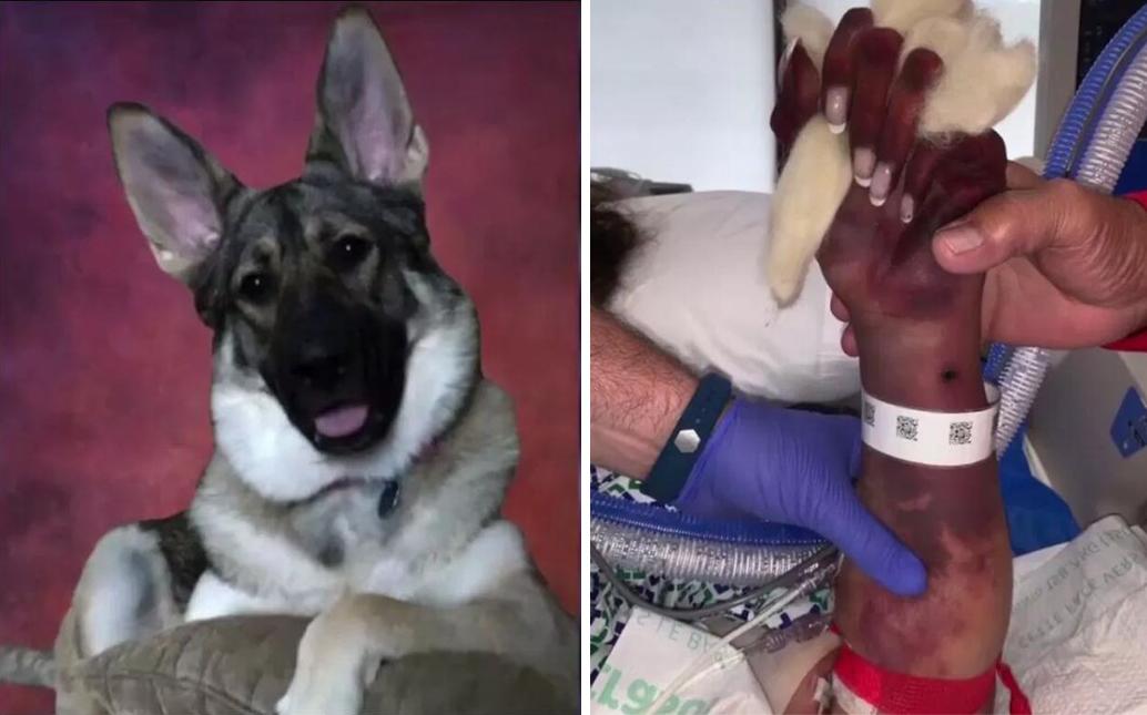美国女子患败血症截肢 原来是狗嘴中细菌作怪