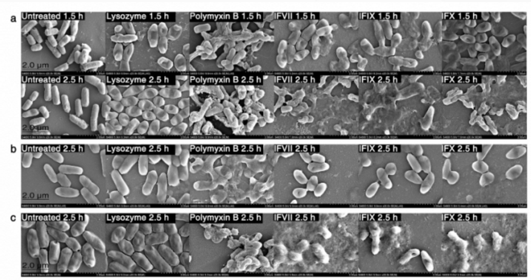 """中国团队发现凝血因子或有助对抗""""超级细菌"""""""