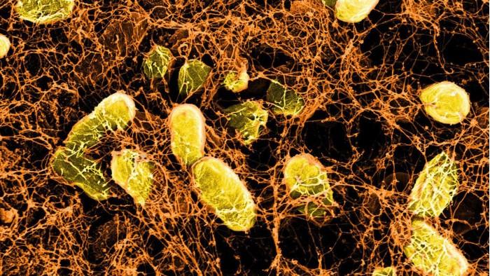 哈佛利用细菌打造喷雾式水凝胶 可治愈内脏伤口