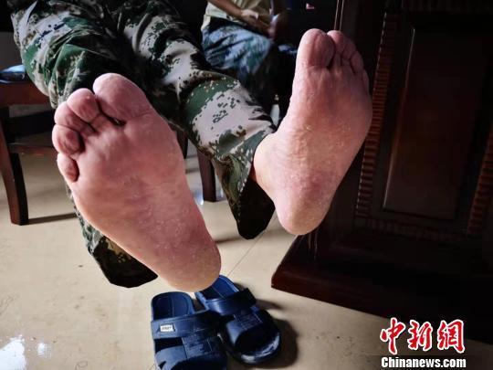 浙江台州抗台救灾侧记:一辆车 一双脚 一群人