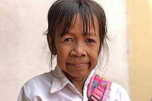 柬埔寨10岁女孩满脸皱纹似六旬老人 常遭欺负