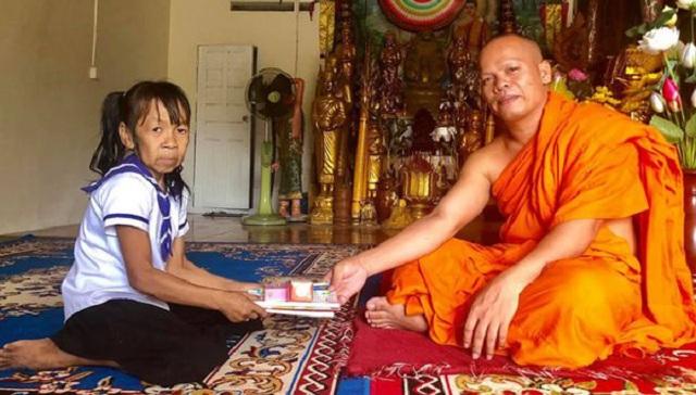 柬埔寨10岁女孩满脸皱纹似六旬老人 常遭同伴取笑