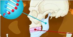 为什么医生都劝你拔智齿?智齿对身体有什么危害?看完就明白了