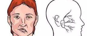 21岁女孩爱美隆鼻,被整成面瘫或无法恢复