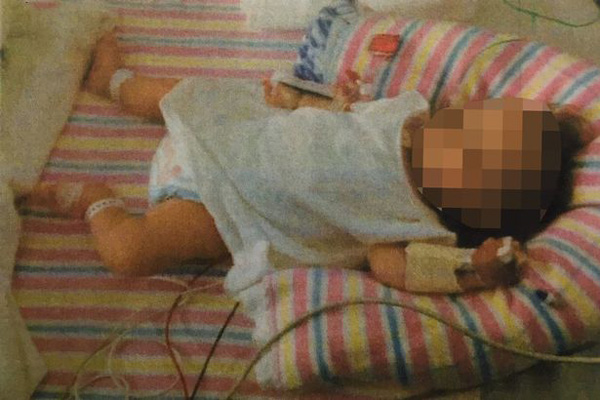 澳大利亚一对父母素食喂养婴儿致其营养不良被判刑