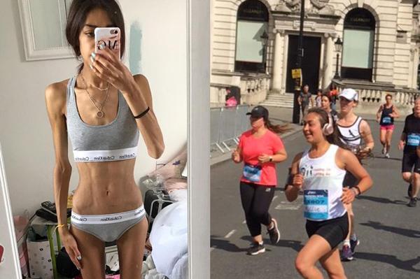 英女子因过度痴迷健身患上厌食症 后成功恢复健康