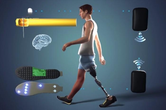 仿生假肢连接截肢者残留神经 获得真实肢体感觉