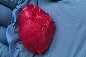 美国公司3D打印微型心脏
