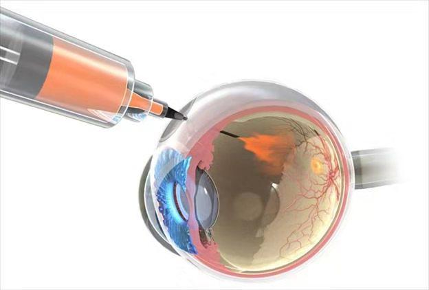 糖尿病性黄斑疾病:治疗不能只看眼
