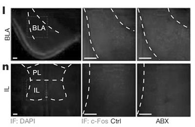 微生物群改变可能影响记忆学习能力