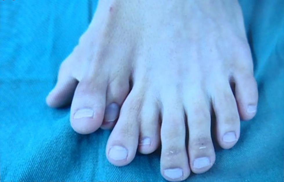 小伙左脚竟然长了九个脚趾,概率小于十万分之一!