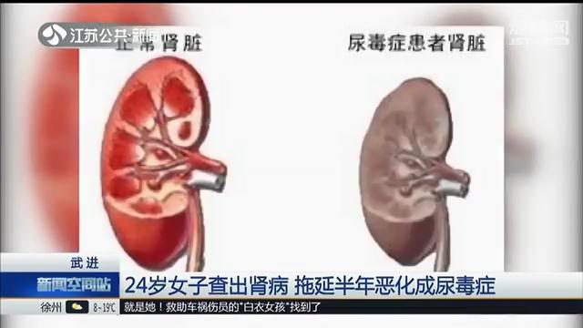 24岁女子查出肾病 拖延半年恶化成尿毒症