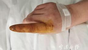 戴了下手套,宁波女子连夜送医!