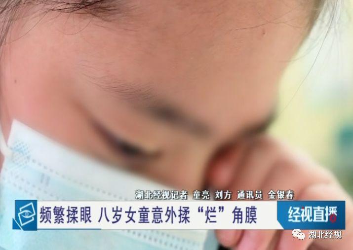 """武汉8岁女孩揉""""烂""""眼角膜,竟是因为这个常见的""""小毛病"""""""