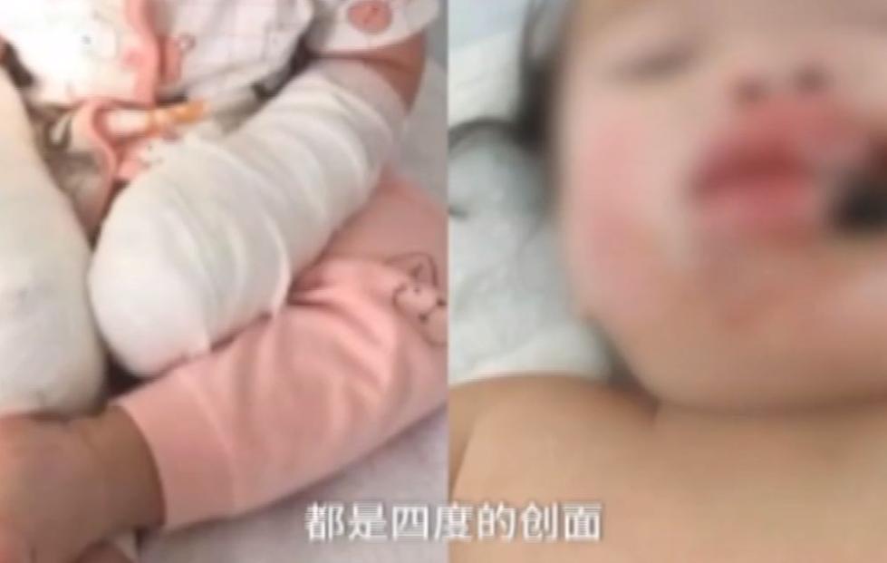 2岁女童面部突遭电击,送进重症监护室,妈妈无比难过:都是我的错